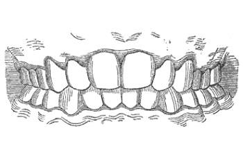 Больные зубы — больное тело