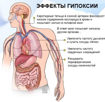 Кислородная недостаточность (гипоксия)