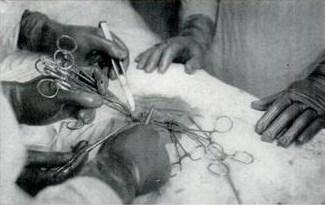 Операция на «живую» нитку