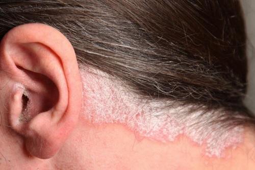 Что такое «псориаз кожи головы»?