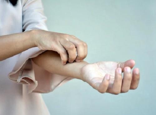 Как снять зуд кожи при псориазе?