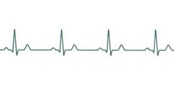 После инфаркта миокарда