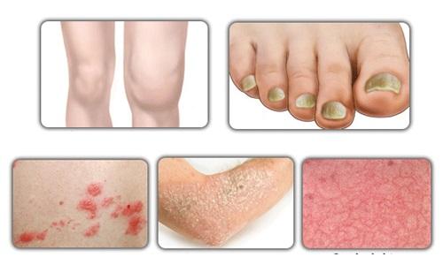 Псориаз: Причины, симптомы и лечение